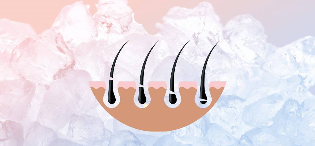 Ice Laser Hair Removal